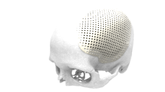 LaserImplant Cranial plate
