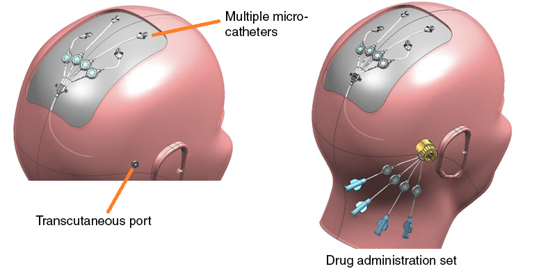 Drug infusion and administration