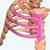 Rib Implant