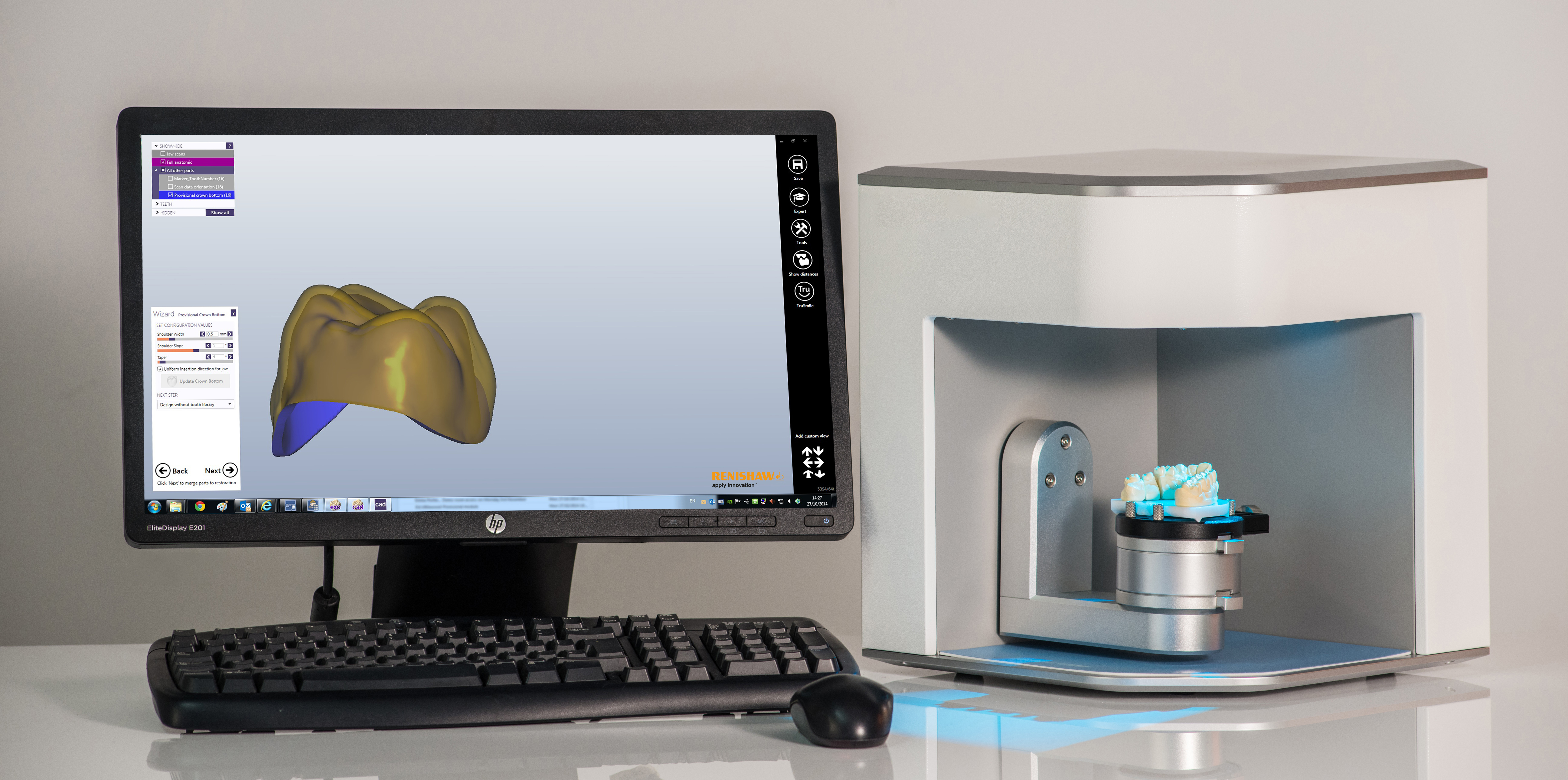 Medit scanner coupled with Renishaw Dental Studio (RDS) for design