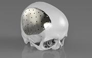 Cranial plate