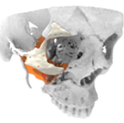 LaserImplant Zygomatic placement guide
