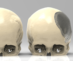 Cranioplasty: Pre and post surgery comparison