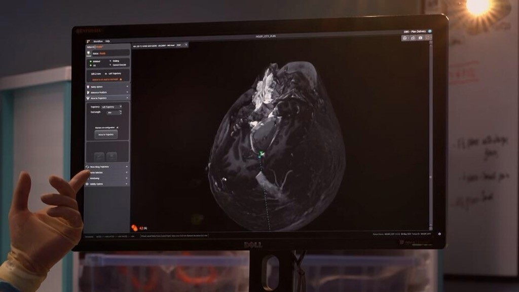 Renishaw's neuroinspire software used in Holby City