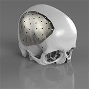 Metal 3D printed cranial plate