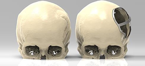 Comparison before and after craniotomy, with a 3D metal cutting guide